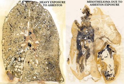 Mesothelioma due to asbestos exposure